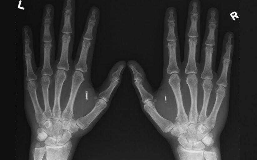 Biohacking; What would you upgrade?